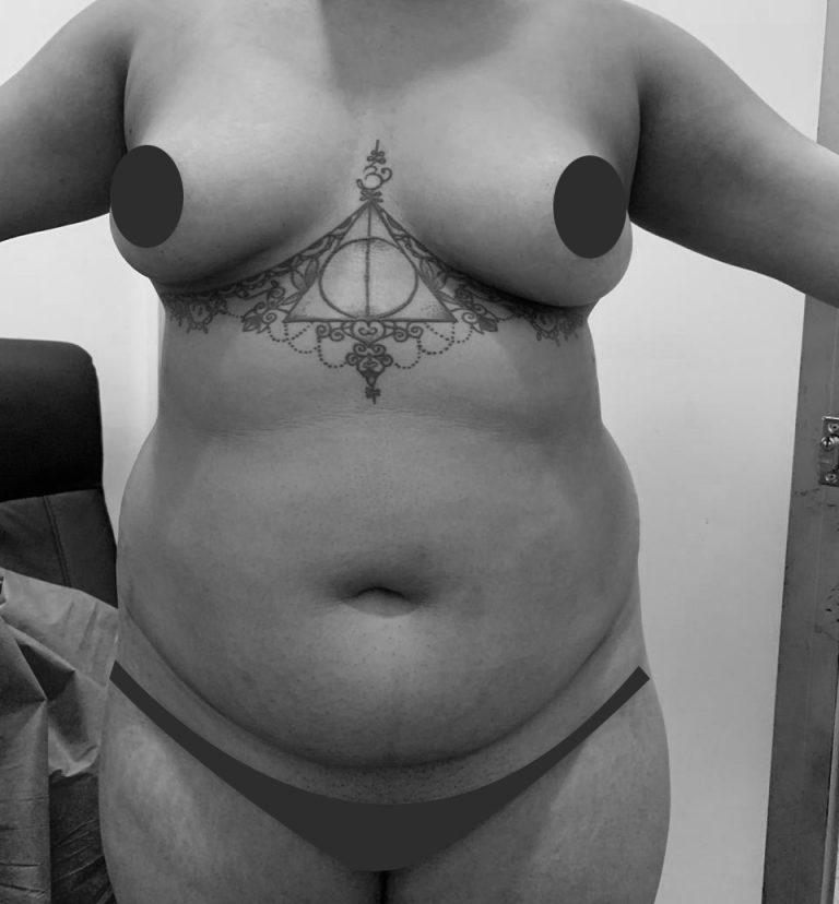 abdominoplastia-antes