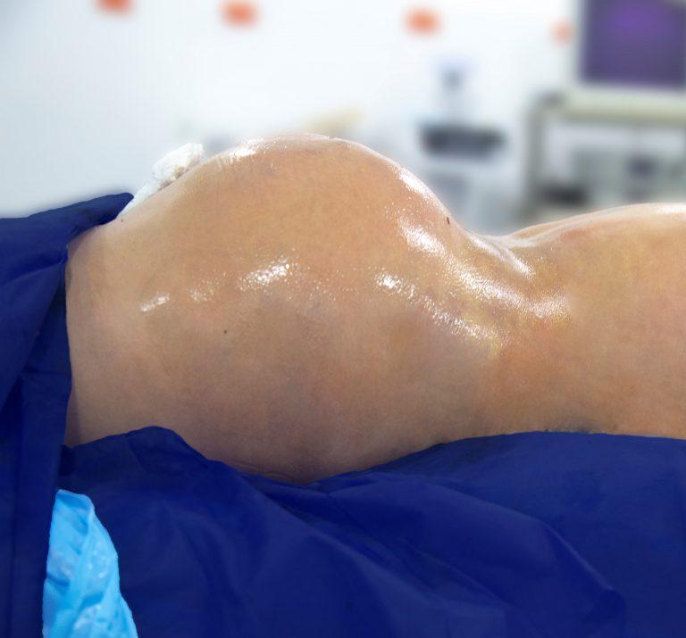 posterior yenni pineda